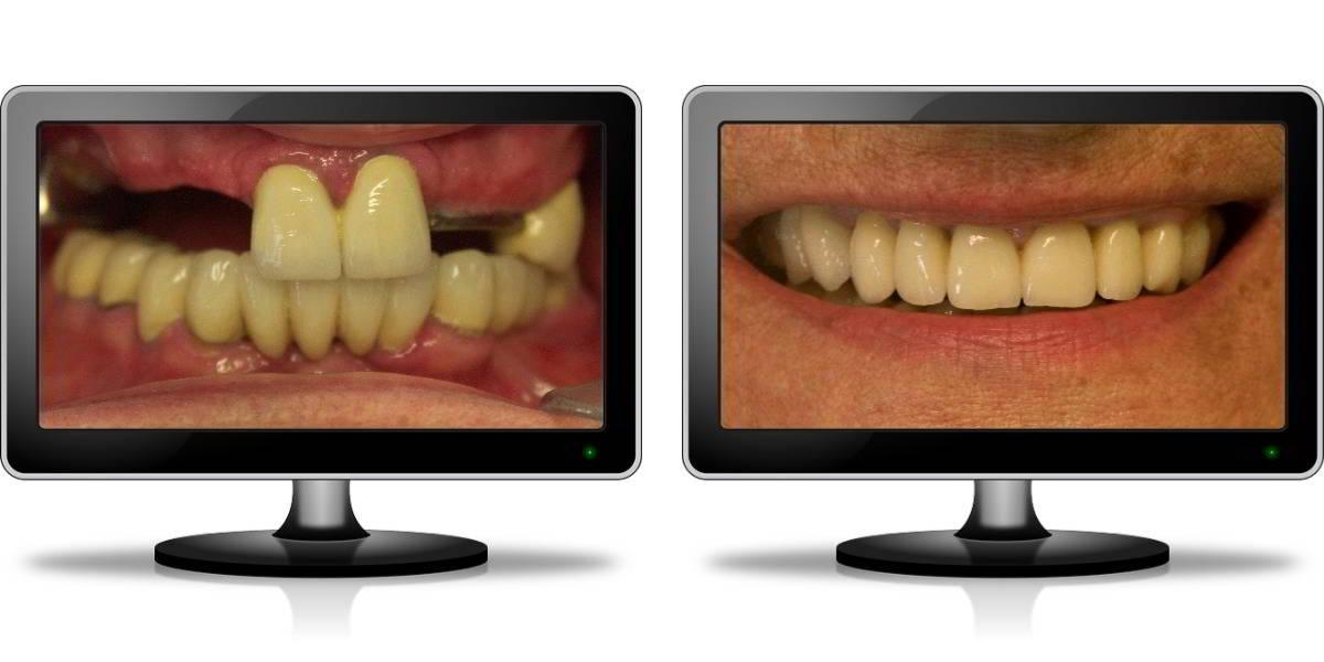 9 Implanturi cu aditie osoasa - Caz 8