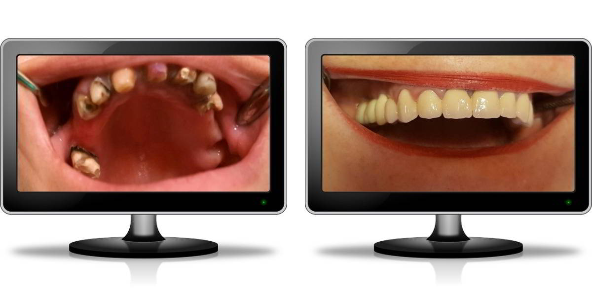 9 Implanturi dentare - Caz 9