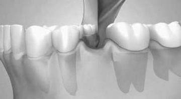 Dental edentation