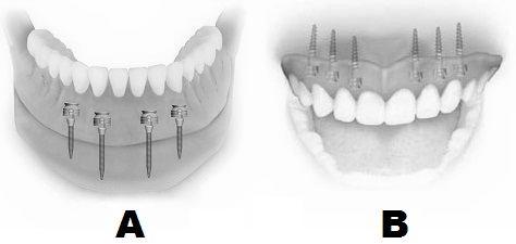 Inserarea de mini-implanturi pentru proteza mobila