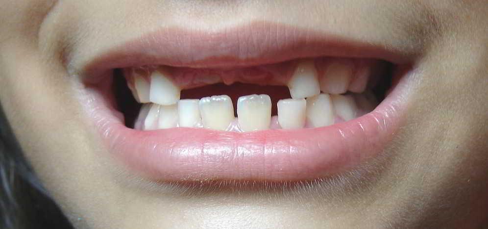 order-loss-of-milk-teeth-to-copii.jpg