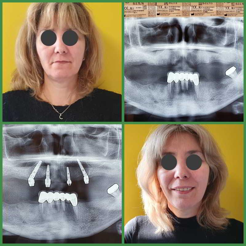 Proteza-totala-vs-implanturi-FIX-IT-ON-4-caz-1.jpg