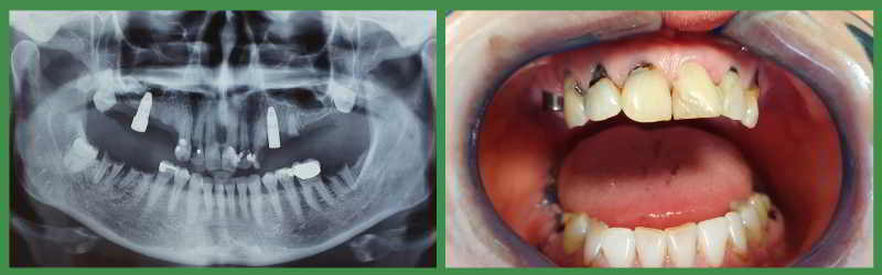 Radiography and dental situation before implants