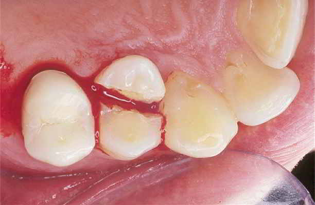 Penetrating corono-radicular fracture with tooth pulp interception